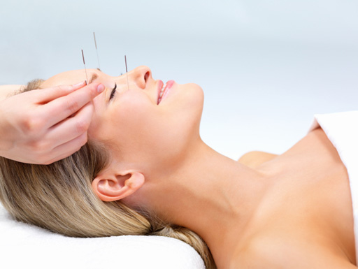 A Complete Guide About Acupuncture