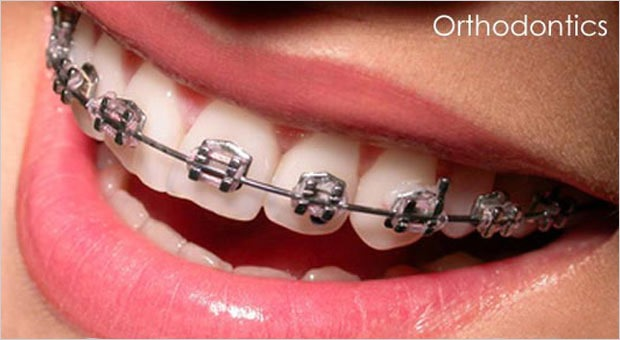 Orthodontic Treatment Doesn't Have To Be Visible!