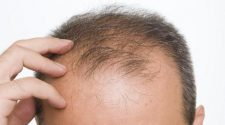 How Does Hair Loss Surgery Work?