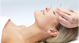 Everything You Need To Know About Acupuncture