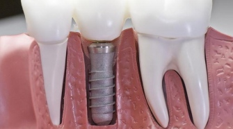 dental implants Dublin