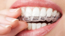 The Complete Beginner's Guide To Teeth Whitening Trays