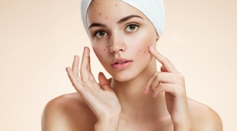 Get Rid Of Acne Scars: The Best Products For You