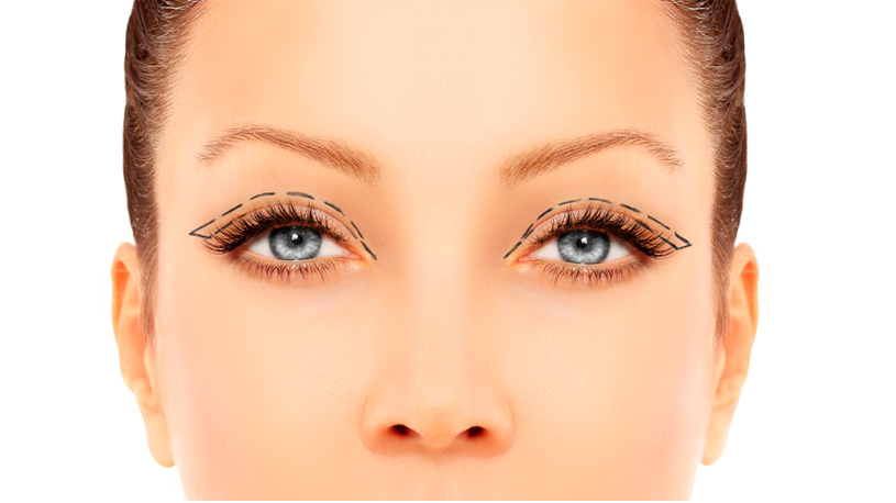 How Much Does Upper Eyelid Surgery Cost? 6 Ways To Lessen Your Expense