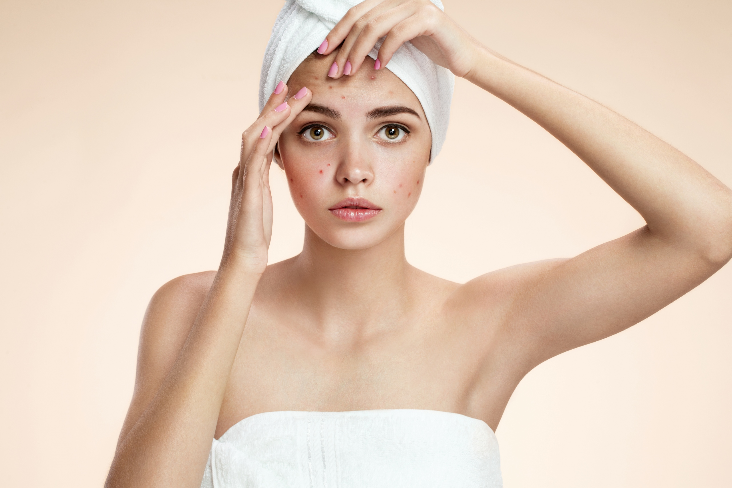 Why Does Acne Occur?