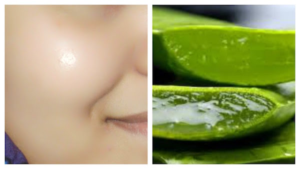 Aloe Vera Gel For Acne - Does It Surely Work?