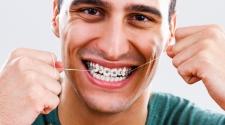 4 Tips For Proper Dental Hygiene While Wearing Braces