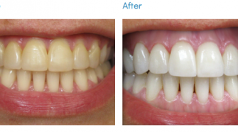 Can Children and Teens Get Teeth Whitening Done?