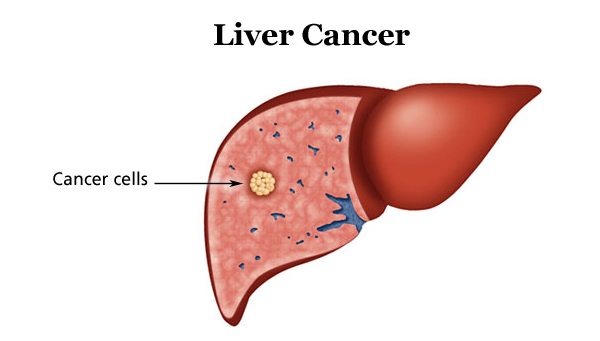 Liver Cancer - A Condition Of The Liver Cells, That May Prove Fatal At Its Advance Stage