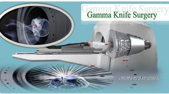 Gamma Knife Surgery
