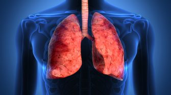 What is COPD What Are The Suitable COPD Treatments