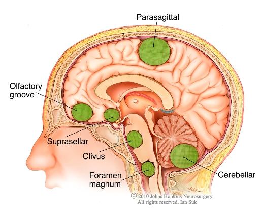 Meningioma: Causes And Their Treatments