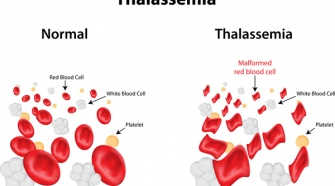 Types Of Thalassemia and Their Causes